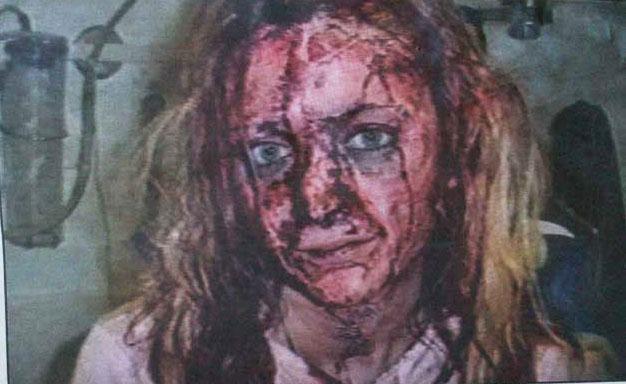 swedish_rape_victim